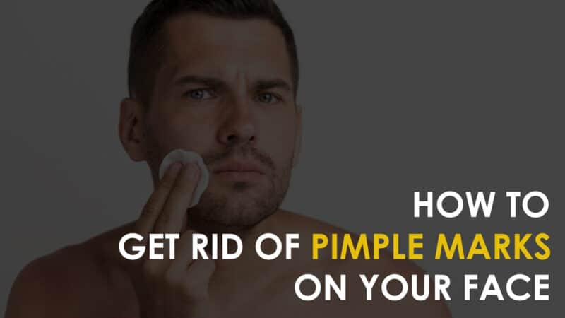 How to Remove Pimple Marks and Acne Scars – Home Remedies